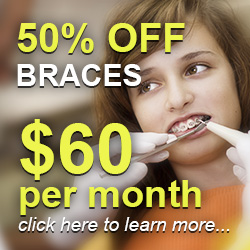 Braces Coupon